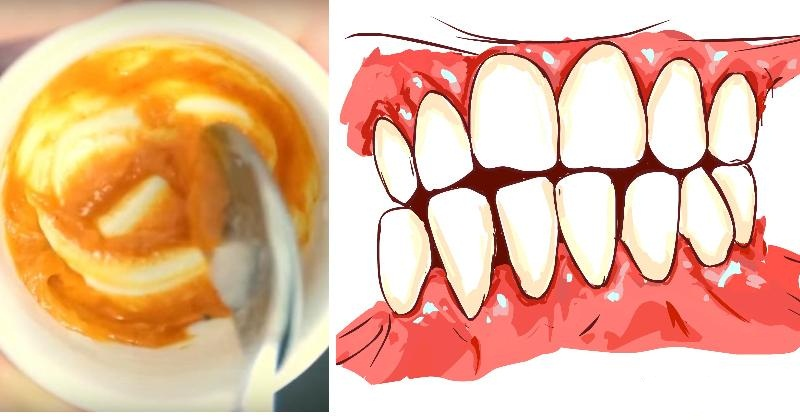 This Homemade Toothpaste Reverses Gum Disease and Whitens Teeth Naturally