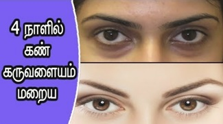How to Remove Dark Circles | Beauty Tips
