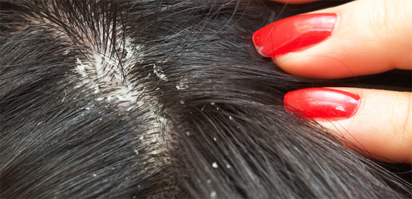 4 Solutions Resolve Dandruff with Practical way at Home