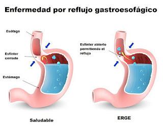 Reflujo, enfermedad del reflujo acido, que es el reflujo acido, acidez cronica del estomago, factores que provocan el reflujo, acidez,