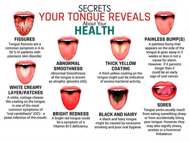 Oral Medicine Tongue