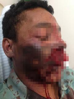 Homem fica ferido após celular explodir enquanto conversava