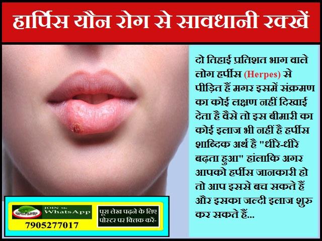 हार्पिस यौन रोग से सावधानी रक्खें