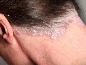 Obat eksim kering di kulit kepala