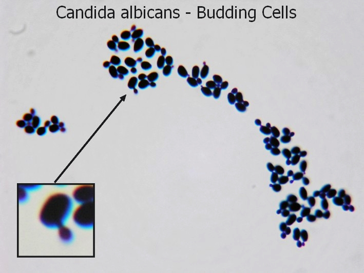 fun with microbiology what s buggin you candida albicans