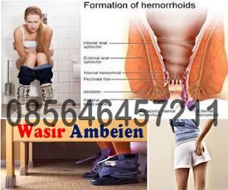 Obat Antihemoroid AmbeJOSS Terbaru Di Apotik