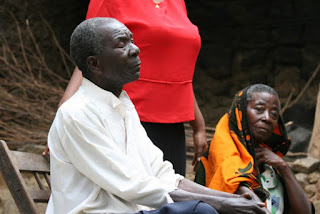 Man in Tanzania Africa with River Blindness.