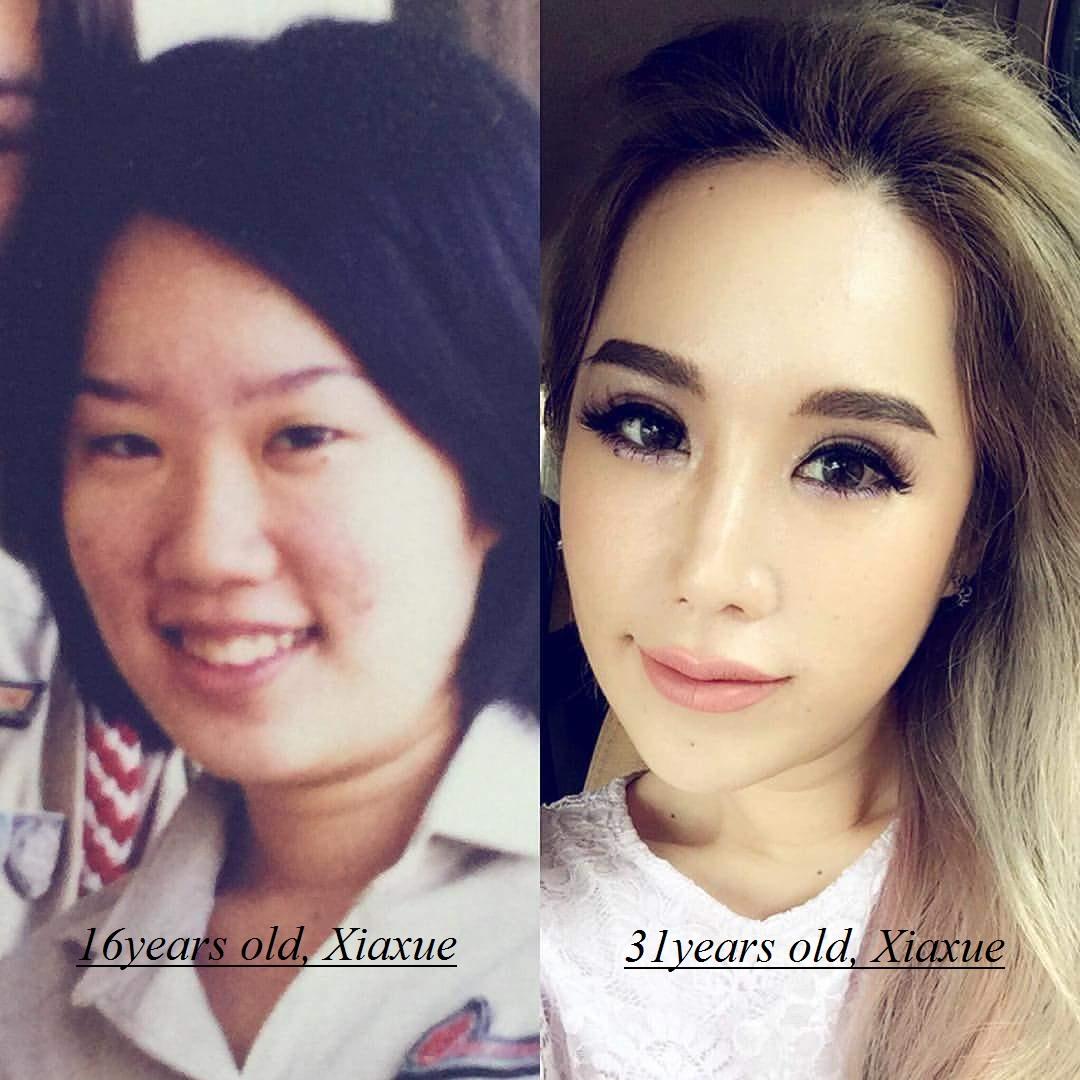 blogger Xiaxue, Xiaxue plastic surgery
