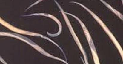 dutasteride vs finasteride hair loss