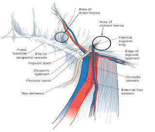 Indirecta inguinal hernia pdf