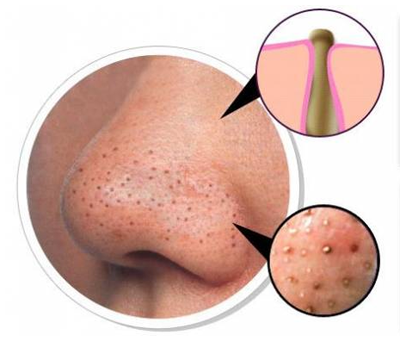 How To Get Rid Of Blackhead Acne? - Get Acne Clear Skin