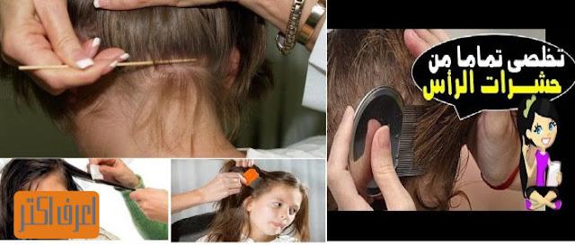طريقة التخلص من حشرات الشعر ومنع اصابة شعر طفلك نهائيا