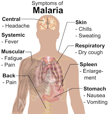 Malaria— Sign In Addition To Symptoms You Lot Should Aware Of
