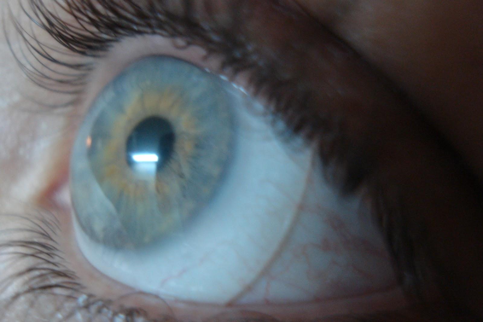 Informações para médicos oftalmologistas e pacientes sobre as lentes  esclerais modernas. ffa77ad1c8