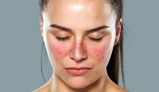 Penyakit Lupus - Gejala, Penyebab, dan Cara Mengobati