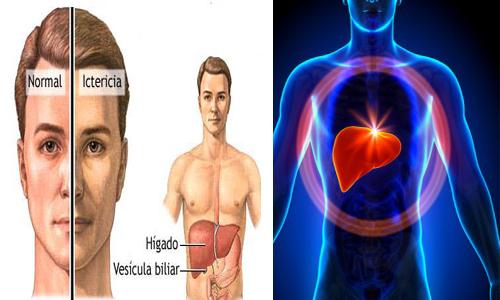 señales de insuficiencia hepática