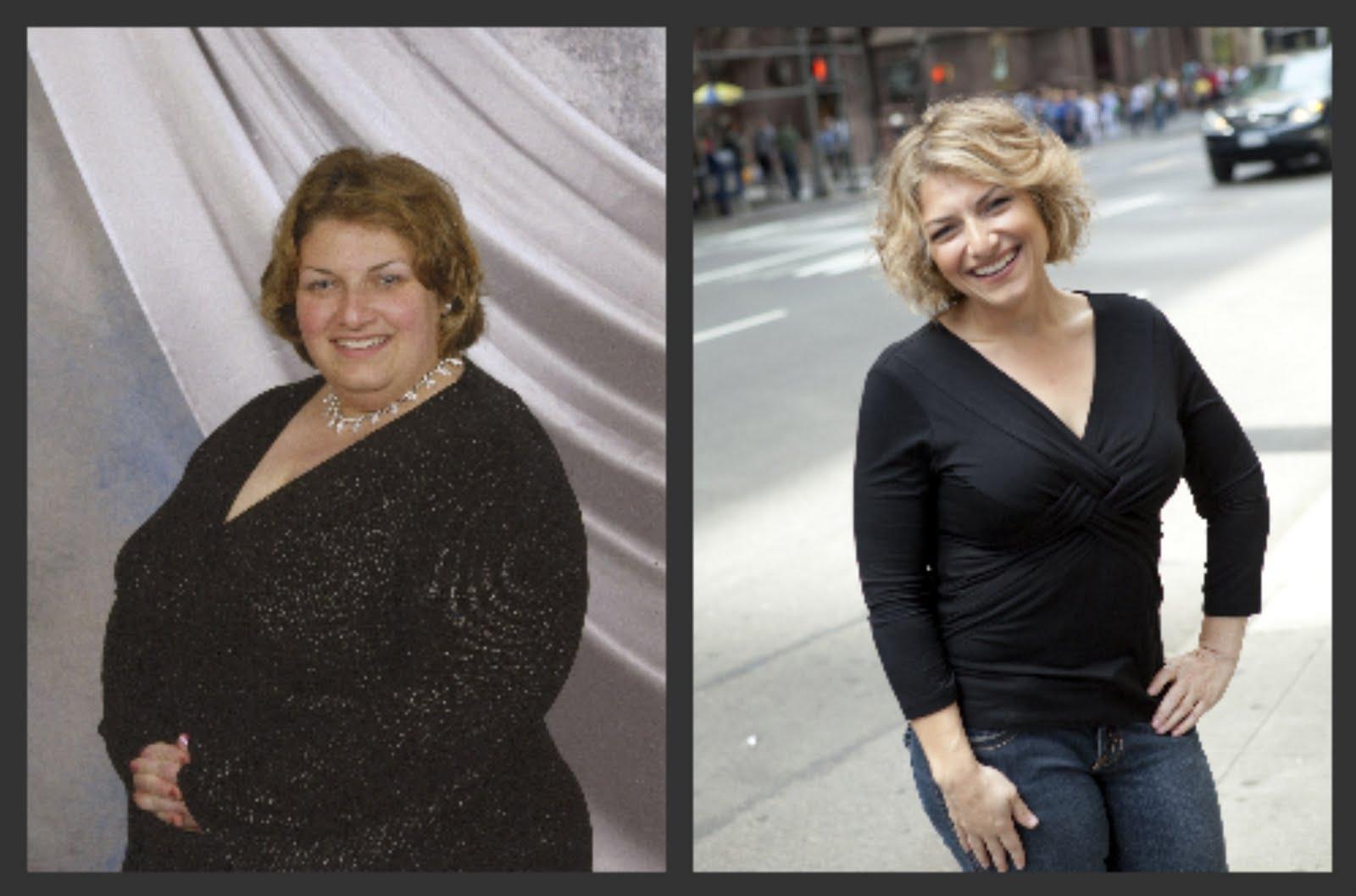 weight loss surgery meet and greet