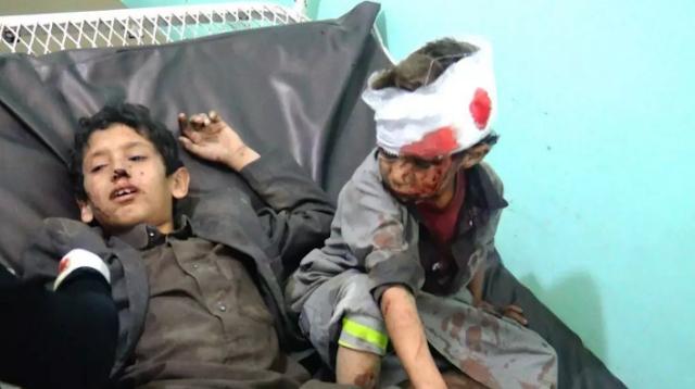 طيران التحالف العربي يهدي الحوثي مزيدا من المجازر للمتاجره بدماء الابرياء !