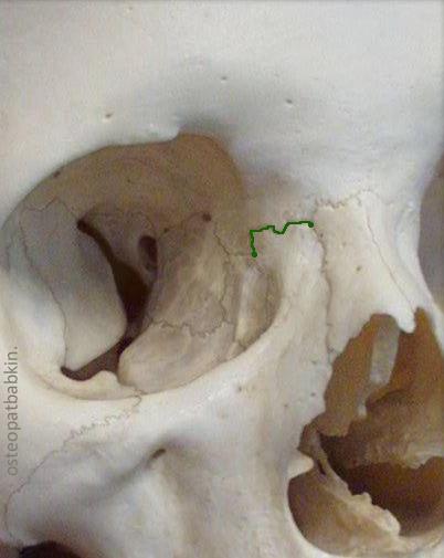 верхняя челюсть Maxilla, лобно-верхнечелюстной шов, или frontomaxillary suture