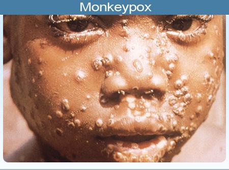 monkey-pox-virus-symptoms-2