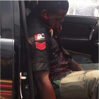 Brutality! Police Escort Shot Deah in Port-Harcourt, Rivers State (Very Graphic Photos)