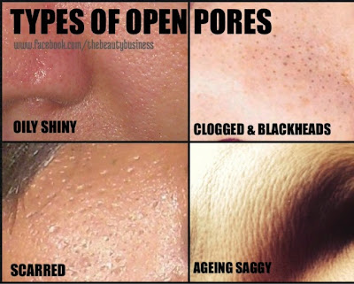 types of open pores how to minimize open pores