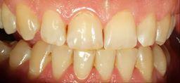 Zankowanie zębów