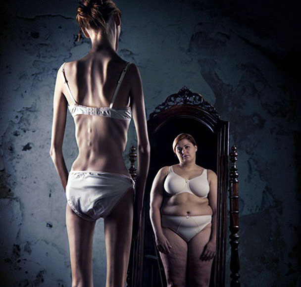 an understanding of the self starvation syndrome anorexia People with anorexia generally restrict the  in anorexia nervosa's cycle of self-starvation,  it's incredibly important to understand the many ways that.