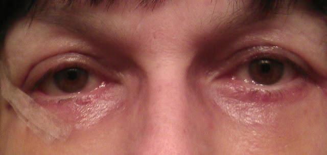 irritation of the eyes