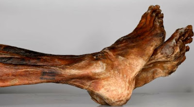 Ötzi the iceman's tattoos were an early form of 'acupuncture' say scientists