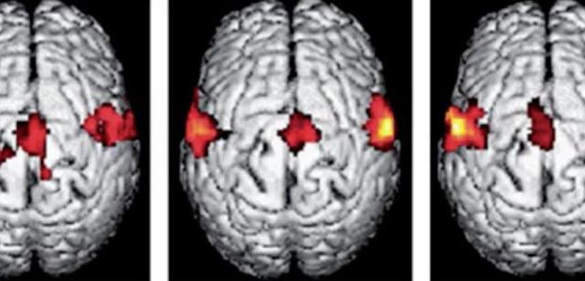 conexiunile neuronilor din creier