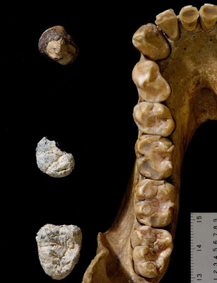 Fossil evidence suggests humans, gorillas split as far back as 10 million years ago