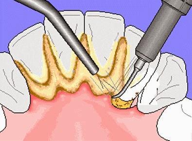 calcium sur les dents