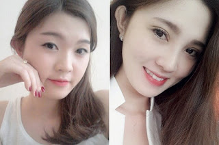 trước và sau khi nâng mũi tại kang nam