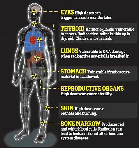 Radiation effect on health