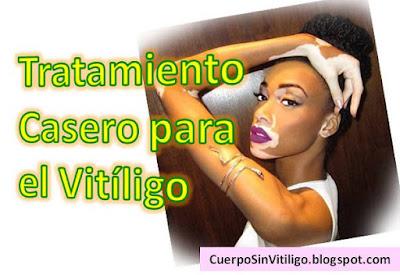 medicina-natural-tratamiento-casero-para-el-vitiligo