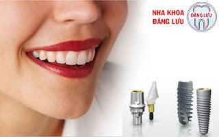 Trồng răng implant trong bao lâu ?