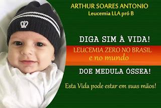 juntos pelo arthur leucemia bebê neném