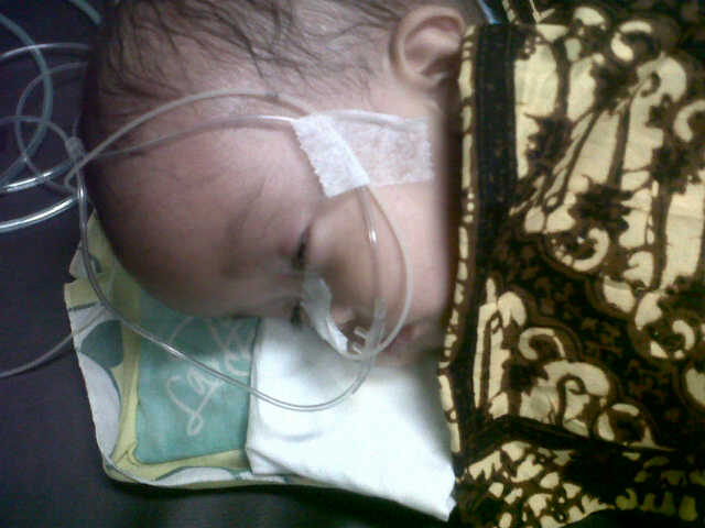 Mari Bantu Anak 8 Bulan Menderiata Hidroesepalus ,Infeksi Selaput Otak saat Ini tidak Sadar