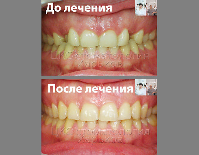 Вид с фронта. До и после ортодонтического лечения.