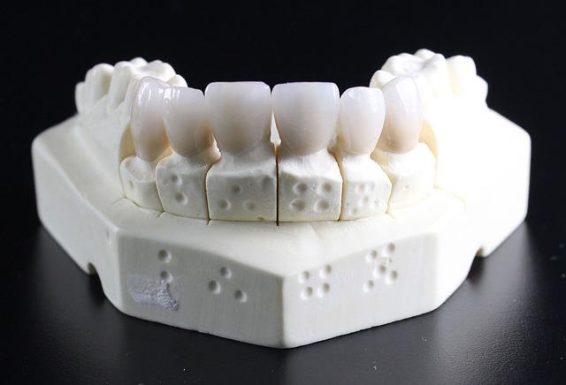Ngetik Cara Menghilangkan Plak Pada Gigi Dengan Mudah