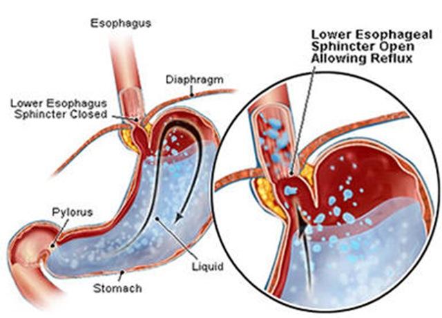 pedih ulu ,hati,acid reflux,bagaimana pedih ulu hati boleh berlaku