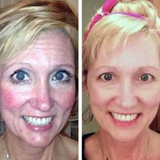 Facial exercise and toning