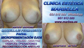 cáncer de mamaria Cáncer de mamaria Tratamiento cicatrices