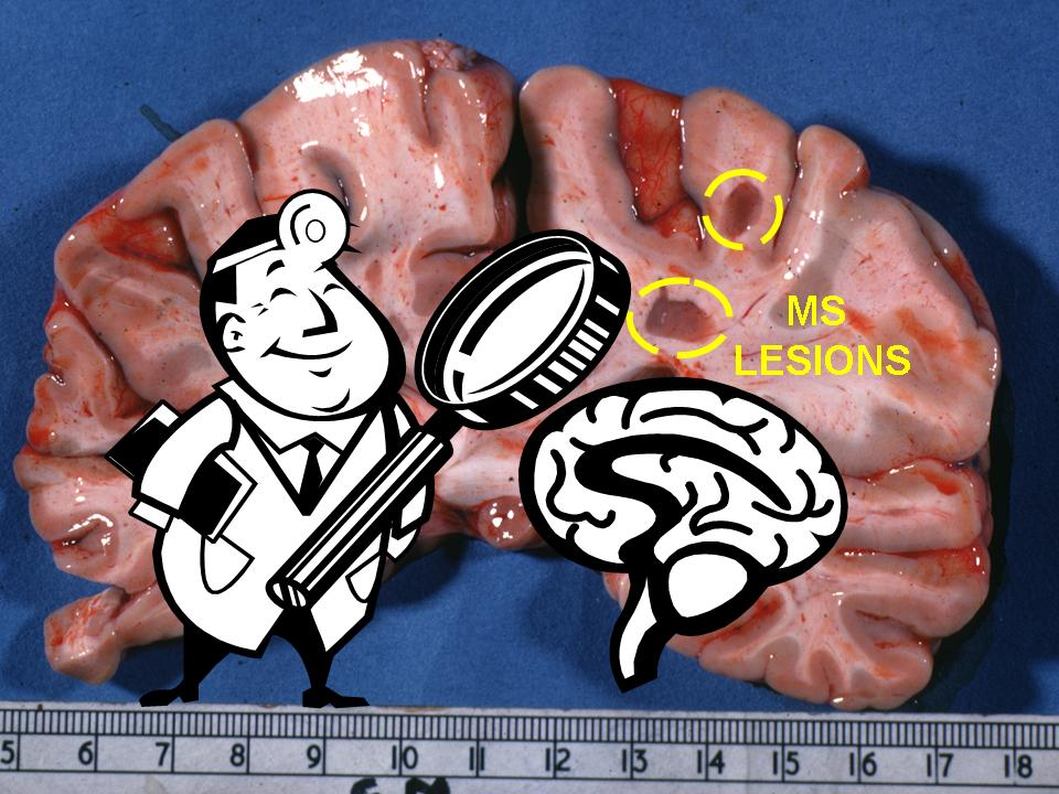 multiple sclerosis research education espresso pathology lesion