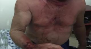 Idoso é ferido com faca após cair em conhecido golpe no interior da PB