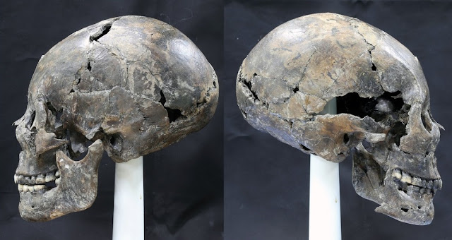 Elongated skull from Silla culture unearthed in Korea
