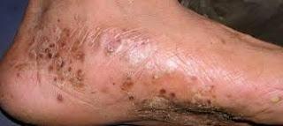 Obat eksim kering menahun di telapak kaki di apotik ampuh