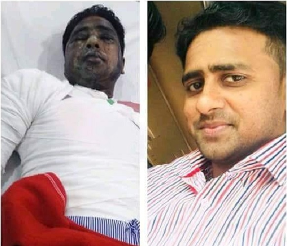 Young Pakistani Christian Suffers Serious Injuries in Male Acid Attack | Gujranwala