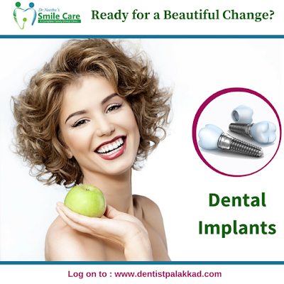 http://dentistpalakkad.com/dental-implants/